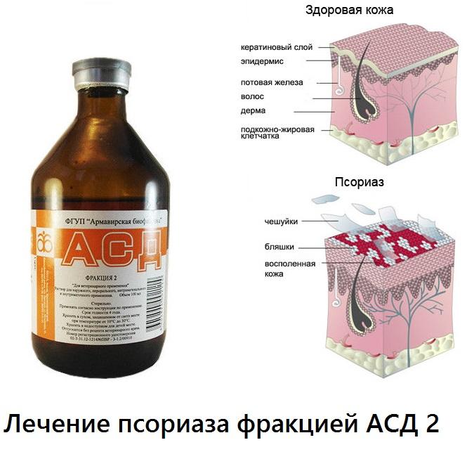 Лечение Псориаза В Грузии